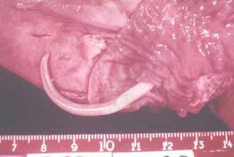 Трихинеллы локализованы в тканях организма, наиболее эффективным методом избавления от них, является цеппинг