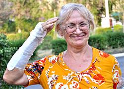 ЭПЛАН - Реабилитация кожи после снятия гипса