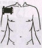 Артрит и артроз плечевого сустава