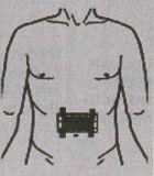 Гастриты, язвенная болезнь желудка и 12-перстной кишки