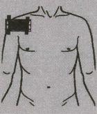 Поражения (артроз, артрит) плечевого сустава