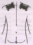 Миозит