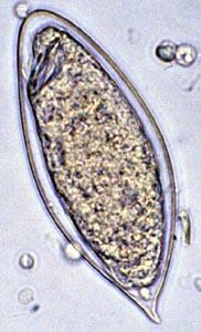 Яйцо шистосомы (Schistosoma haematobium)