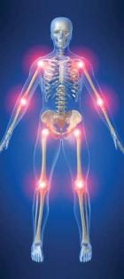 Глюкозамин: лучшее средство от остеоартрита