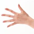 виды аллергии на руках