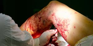 Чешутся вены на ноге причины зуда при варикозе ног и как